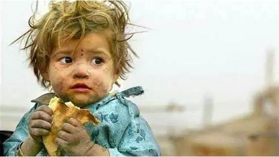 非洲孩子挨饿图片_中国挨饿人口
